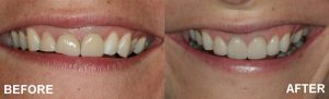 before and after using veneers