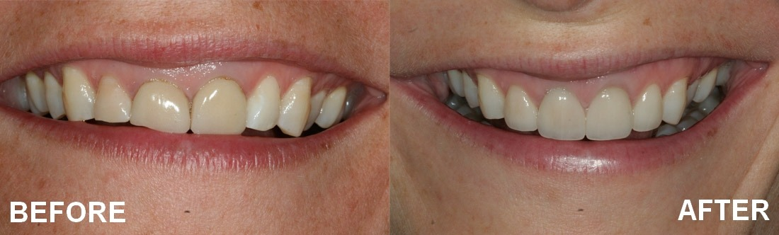 before and after the use of veneers