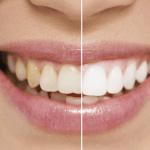 teeth whitening woodford
