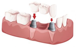 A dental bridges procedure at Cheadle dental practice