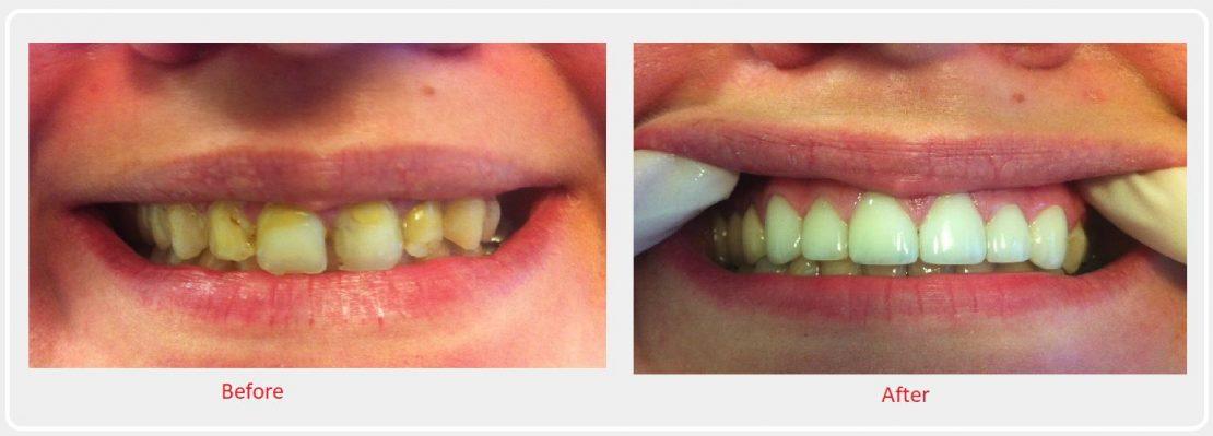 cheadle dental smile make over