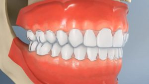 kinds of veneers