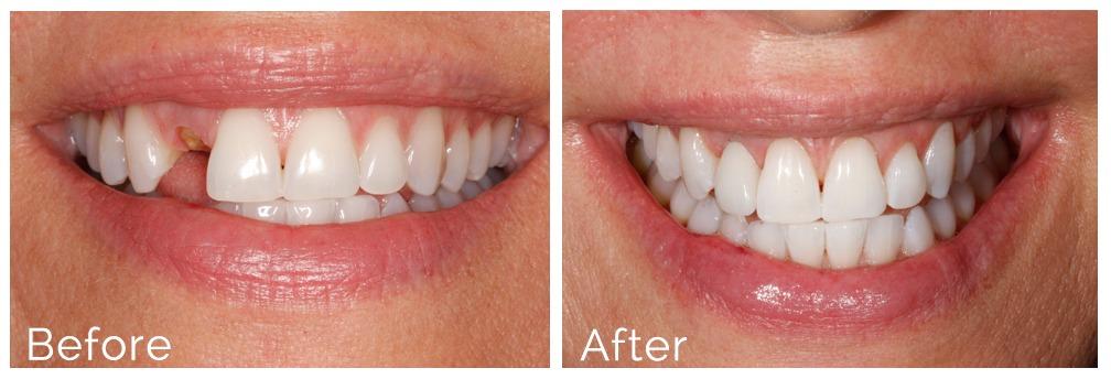 dental implants before after atlanta ga