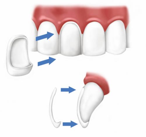 Dental veneers procedure at cheadle dental practice