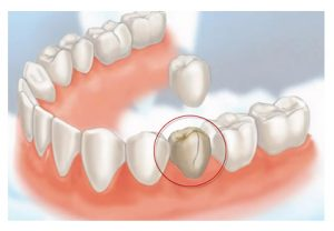 Crown procedure for a broken tooth - cheadle dental practice