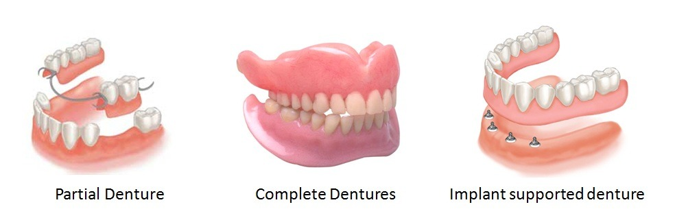 Cosmetic dentist at cheadle dental practice