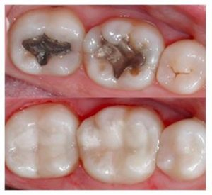 Teeth filling procedure at Cheadle dental practice before and after picture
