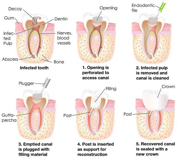 procedure of root canal treatment at cheadle dental practice