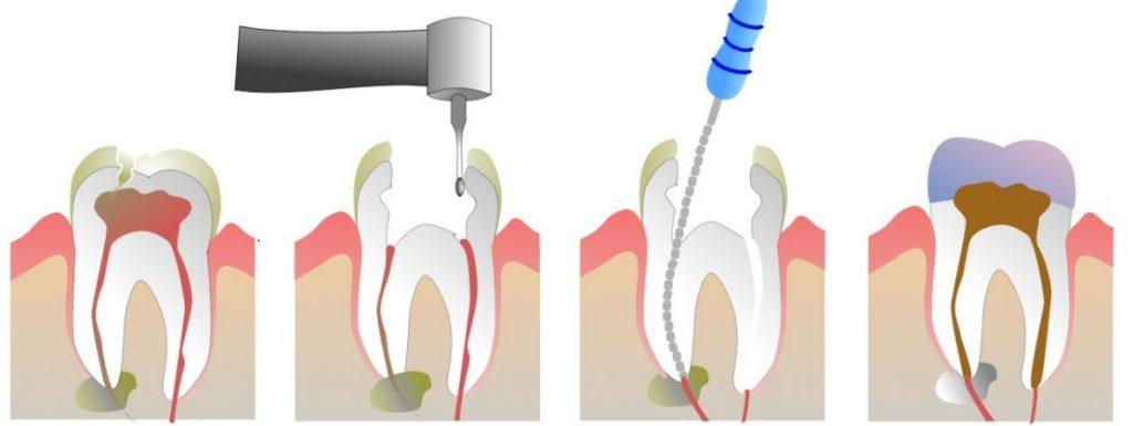 root canal treatment cheadle