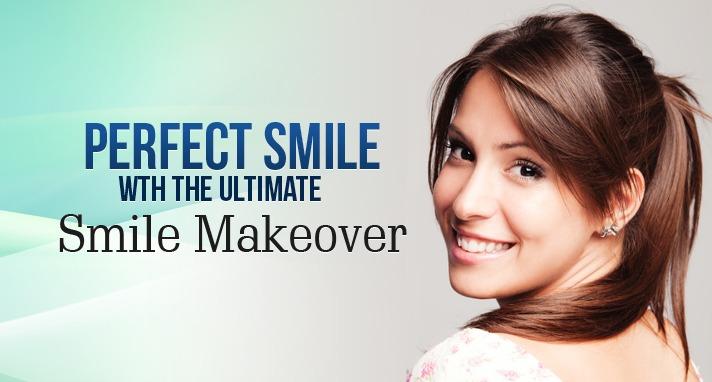 the perfect smile make over