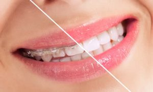 Teeth straightening at Cheadle dental practice