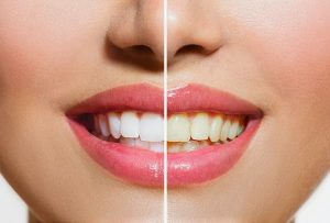 Teeth Whitening a cosmetic dental treatment