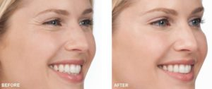 botox fillings before and after