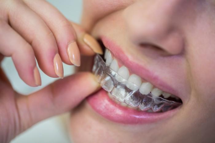 Magic Teeth Brace